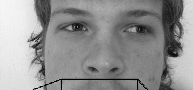 Martin's lip: In defense of fuzz